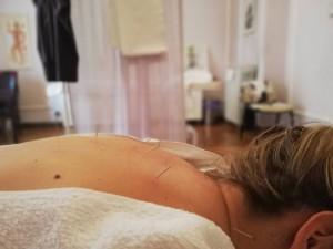 Fertility treatment 2